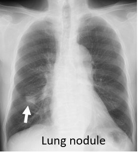 abnormal chest x ray lung nodule
